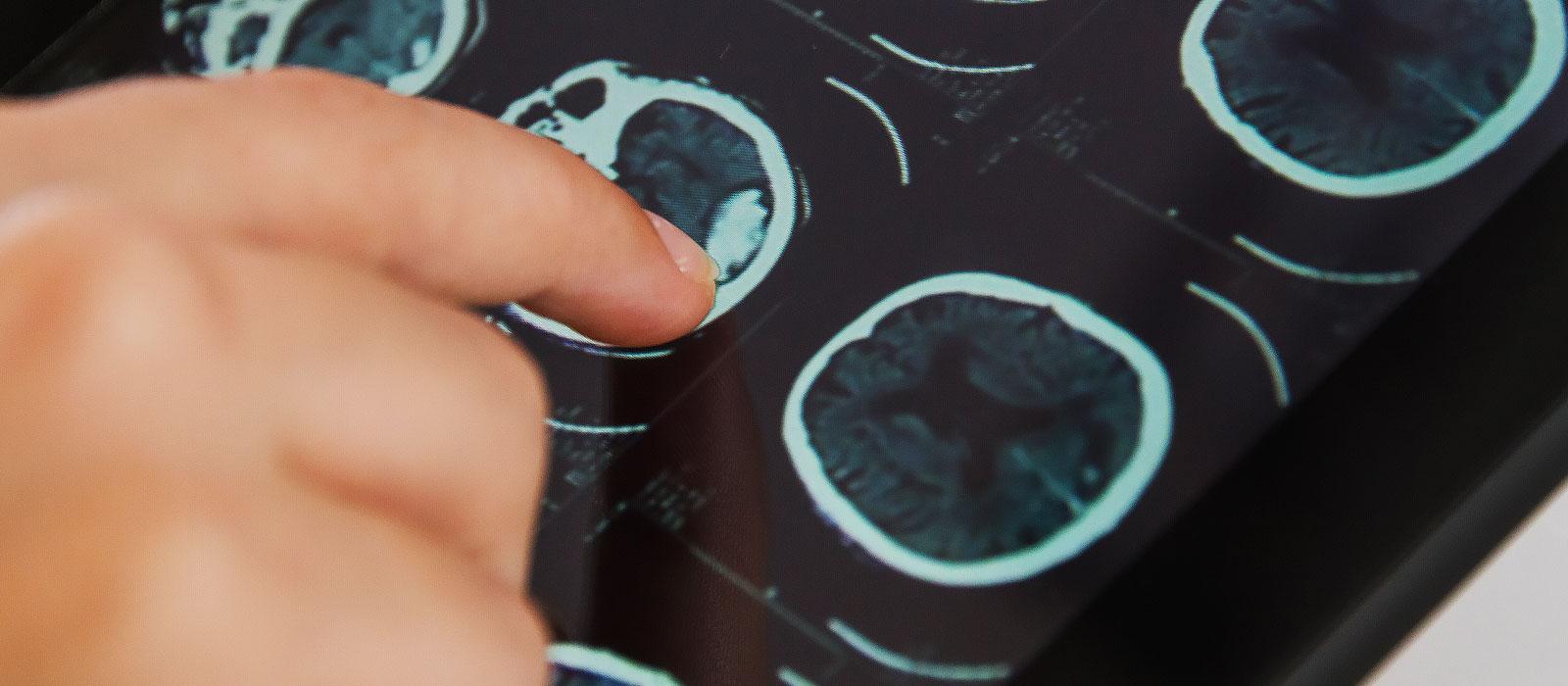 professore-neurologo-fabio-antonaci-medicina-cefalee-fondazione-mondino-emicrania-nevralgia-trigemino-7